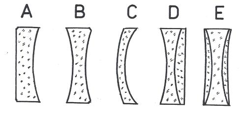 Obr. 3: Typy negativních (zmenšujících, rozptylných) čoček: A – jednoduchá ploskovydutá (plankonkávní), B – jednoduchá dvojvydutá (bikonkávní), C – jednoduchá vydutovypuklá (konvexkonkávní), D – dvojitá (achromatická) s dvojvydutou a ploskovypuklou složkou, E – trojitá (achromatická) s dvěma vydutovypuklými a jednou dvojvydutou čočkou.